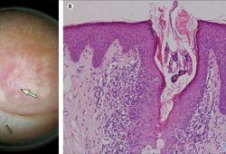 LANCET INFECT DIS:乳头蠕形螨病