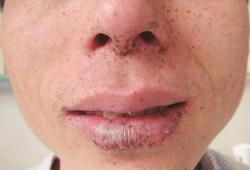 口唇、口腔黏膜、手足出现褐色斑点 不痛不痒就没事?