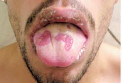 NEJM:白塞病所致的口腔和生殖器溃疡-病例报道