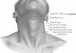 "Am J Otolaryngol:在萎缩性鼻炎中局部丝裂霉素C使用能够协助碱性鼻洗<font color=""red"">利福平</font>治疗"