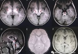 "Neurology:可治<font color=""red"">性</font>儿童早期起病肌<font color=""red"">张力</font>障碍的影像学线索:锰中毒"