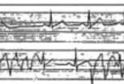 7种易猝死的心电图,临床医生要重视!
