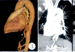 CTA诊断左肺下叶体动脉异常供血1例
