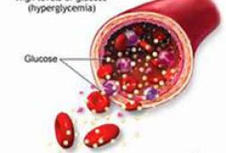 DIABETOLOGIA:从临床和空腹生化指标测定1型糖尿病细胞功能