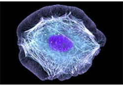 浆细胞疾病的困惑与难点