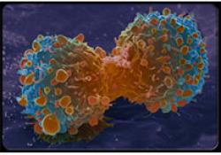 Clin Cancer Res:研究发现炎癌转化重要趋化因子