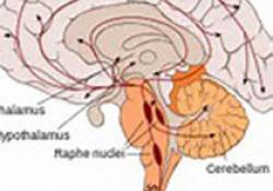 "Neurology:<font color=""red"">炎症</font><font color=""red"">因子</font>与中风"