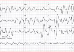 血钾异常的心电图表现,最经典的在这里!