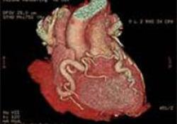 """J Hypertens:高血压和多种心血管<font color=""""red"""">危险</font><font color=""""red"""">因素</font>会增加视网膜静脉阻塞的风险"""