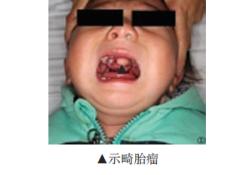 """鼻咽部<font color=""""red"""">畸胎</font><font color=""""red"""">瘤</font>并腭裂患者1例"""