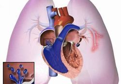 "<font color=""red"">Journal</font> Hypertension:氨肽酶A抑制剂QGC006治疗高血压的临床前结果"