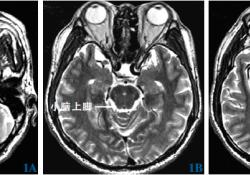 """弥散张量成像追踪齿状-红核-丘脑束在脑深部电刺激治疗帕金森病<font color=""""red"""">震颤</font>症状的应用"""