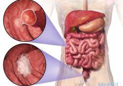 "Braftovi、<font color=""red"">Mektovi</font>与Erbitux的联合使用可提高转移性结直肠癌患者的生存率"