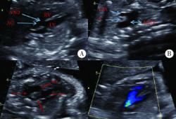 超声诊断镜面右位主动脉弓、左位动脉导管伴法洛四联症1例