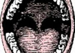 """J Endod:3种<font color=""""red"""">冲洗</font>策略去除下颌磨牙近中根管系统硬组织碎屑能力分析"""