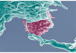"""治疗复发/难治性结<font color=""""red"""">外</font>NK/T细胞淋巴瘤的研究结果"""