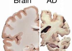 "Masitinib治疗阿尔茨海默症的<font color=""red"">AB</font>09004研究的中期分析结果"