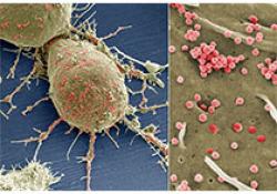 阿斯利康的PD-L1单抗Imfinzi治疗小细胞肺癌III期临床试验达到终点