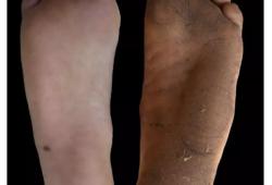 Nature:脚底老茧不影响足部敏感度