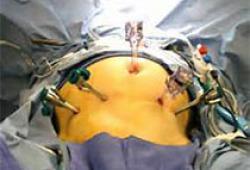 2019 IEHS指南:腹壁疝和腹壁切口疝的内镜治疗(更新版)-A