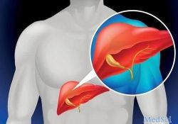 Dig Dis Sci: 益生菌和合生元在非酒精性脂肪性肝病患者中的疗效