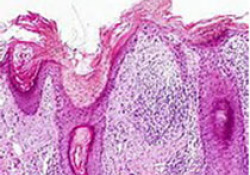 """<font color=""""red"""">margetuximab</font>为HER-2阳性晚期乳腺癌后线治疗带来新选择"""