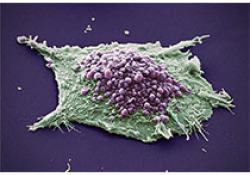 Justin Stebbing教授分享肺癌异质性和治疗选择