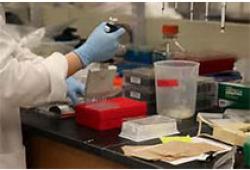 Clin Chem:非编码RNA可作为肝癌的诊断和预后的生物标志物?