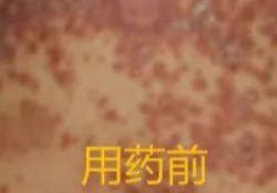 司库奇尤单抗用于急性进行期银屑病的治疗