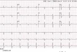 高血压伴冠心病,如何进行血压管理?