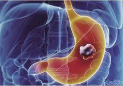 """Gastric Cancer:<font color=""""red"""">长</font><font color=""""red"""">链</font><font color=""""red"""">非</font><font color=""""red"""">编码</font><font color=""""red"""">RNA</font> CTD-2510F5.4在胃癌中的预后作用和临床病理意义"""