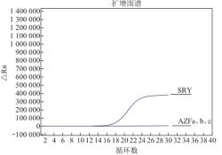一例SRY阳性46,XX男性性反转综合征病例报告