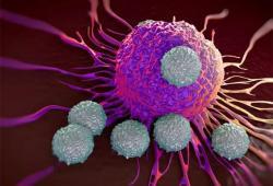 JCO:PD-L1用于新诊断的晚期经典霍奇金淋巴瘤