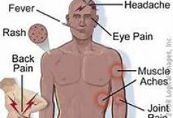 Lancet:Guselkumab vs Secukinumab用于中重度银屑病