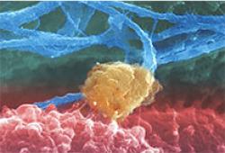 City of Hope正在招募患者进行HPV相关癌症的首个人体T细胞试验
