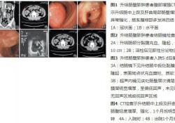 "病例 | 升结肠壁<font color=""red"">脓肿</font>的临床分析"