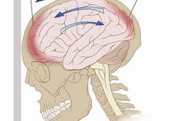 创伤性脑损伤:NYX-458显著改善认知表现和生物标志物