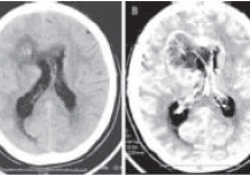 立体定向活检诊断结合32P内放射治疗大脑胶质瘤病1例