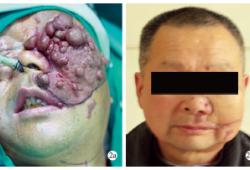 9例增生型毛细血管畸形的手术治疗