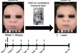 """霍普金斯大学科学家发现,激光能激活一条重要<font color=""""red"""">毛囊</font>再生通路,促进皮肤重获新生"""