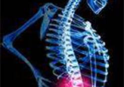 信达生物的TNF单抗仿制药IBI303治疗强直性脊柱炎,与修美乐疗效和安全性相当