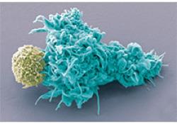 抗血管生成治疗联合放疗在肺癌中的应用前景如何