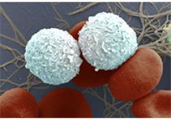 非小细胞肺癌靶向治疗进展