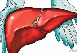 "AP&T: 乙型肝炎核心相关抗原在预测<font color=""red"">肝移植</font>术后乙型肝炎病毒复发<font color=""red"">中</font><font color=""red"">的</font>作用"