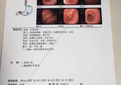 病例 | 胃隆起型糜烂的原因和治疗