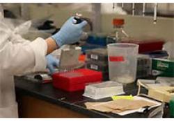 "Clinica Chimica Acta:先兆子痫和<font color=""red"">法</font>布里病患者足细胞尿症研究中尿中podocalyxin和podocin的串联<font color=""red"">质</font><font color=""red"">谱分析</font>"