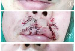 多种皮瓣联合应用修复上唇部多发性基底细胞癌一例