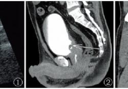 腺性膀胱炎至重度膀胱小梁形成1例