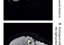 Lancet:外科手术后为什么变傻了?