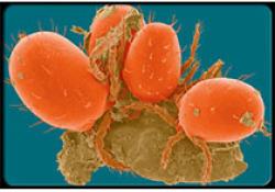 "2019 ESMO:PD-L1单抗<font color=""red"">Atezolizumab</font>联合化疗延长了晚期小细胞肺癌的生存期"